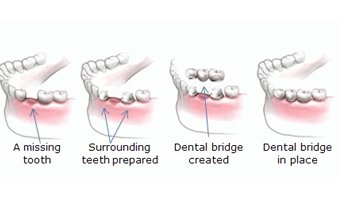 Bridge Dentist Pakenham