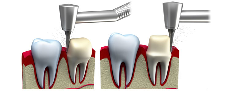 How to Prevent and Control Cavity