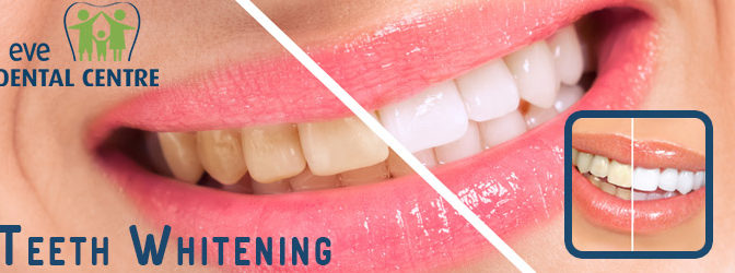 A Guide For Teeth Whitening.