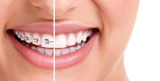 Clear Aligners, Smile Styler